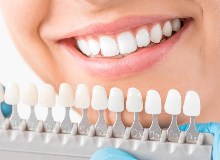 Cedar Smiles Cosmetic & Family Dentistry - Crowns service